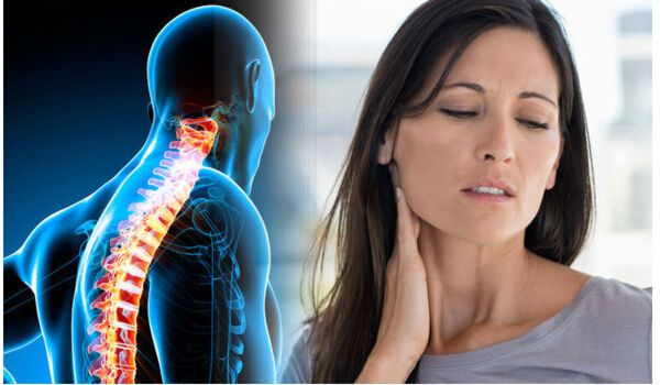 Best Home Remedies For Neck Pain Relief