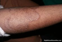Photo of How to Get rid of Ringworm Fast and Forever