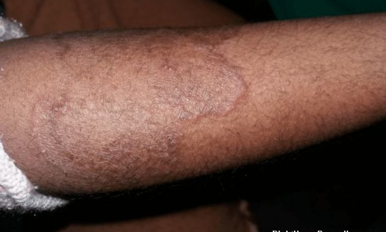 How to Get rid of Ringworm Fast and Forever