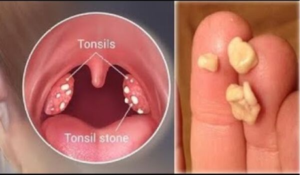 Photo of How to get rid of Swollen Tonsils Fast in 24 hours