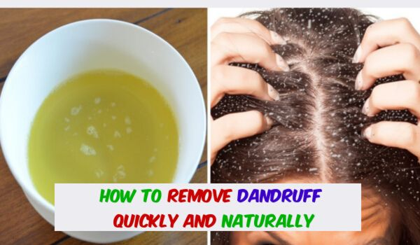 Photo of How to Remove Dandruff Quickly And Naturally