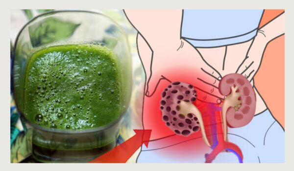 Photo of How to Cleanse and Detox the Kidneys Naturally at Home