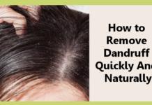 Remove Dandruff Quickly And Naturally