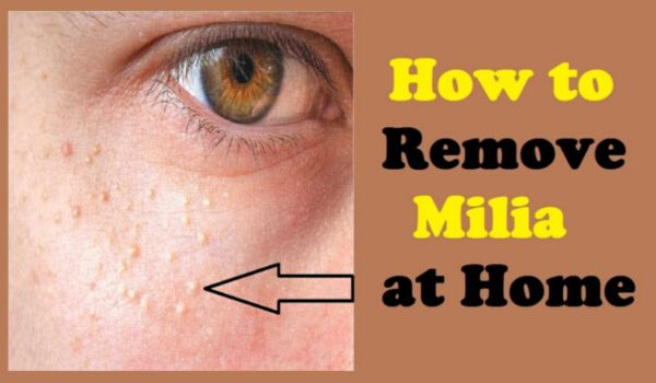 Photo of How to Get Rid of Milia At Home Easily