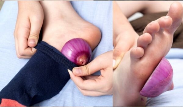 Photo of What Happens When You Put Onions In Your Socks Overnight