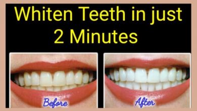 Photo of How to Whiten Yellow Teeth Naturally At Home in 2 Minutes