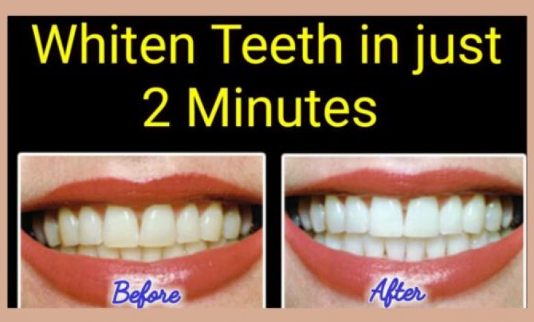 Whiten Yellow Teeth Naturally At Home in 2 Minutes