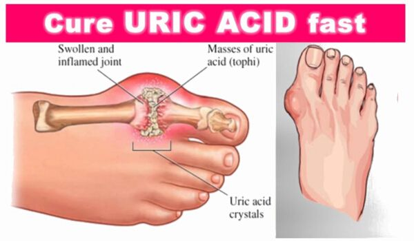 Photo of Decrease Your Uric Acid Levels With Top 7 Home Remedies