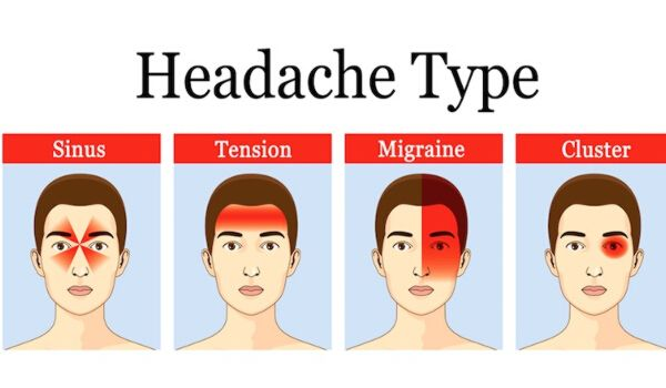 Photo of How to Cure Migraine Permanently Without Any Medicine