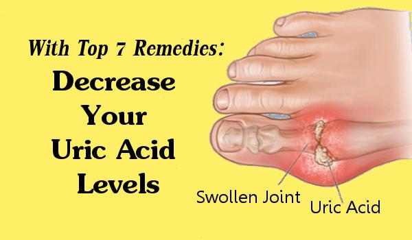 Decrease Your Uric Acid Levels