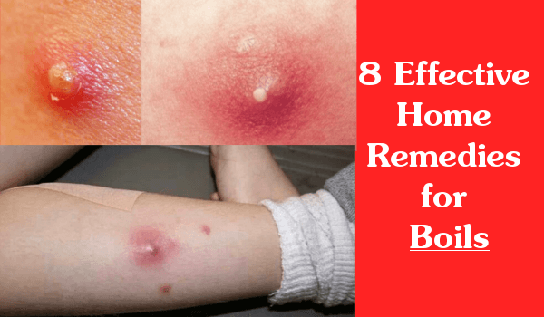 8 Effective Home Remedies for Boils