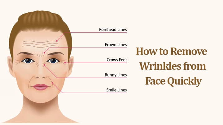 How to Remove Wrinkles from Face