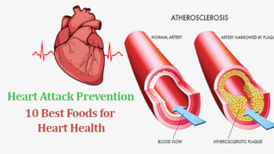 Photo of Heart Attack Prevention: 10 Best Foods for Heart Health
