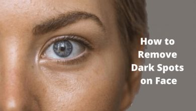 Photo of How to Remove Dark Spots on Face with 10 Home Remedies