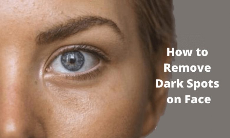 How to Remove Dark Spots on Face