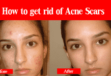 How to get rid of Acne Scars with 10 Home Remedies