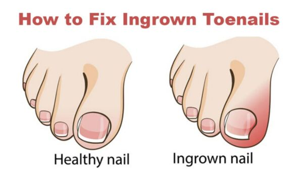 Photo of How to Get Rid of Ingrown Toenails with 10 Home Remedies