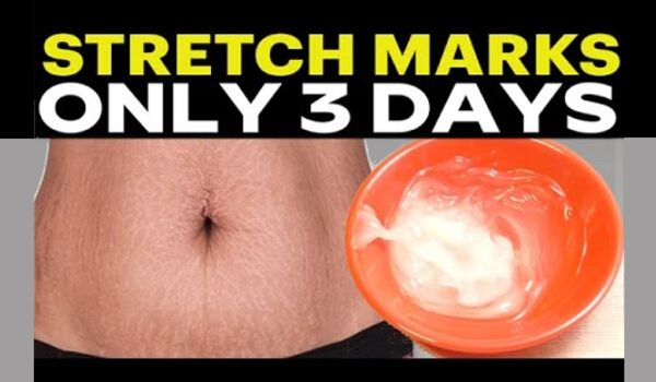 Photo of Stretch Marks Removal: 10 Best Home Remedies for Stretch Marks