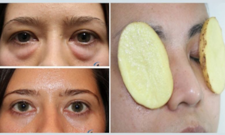 How to Remove Eye Bags Permanently