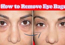 Eye bags causes: How to Remove Eye Bags