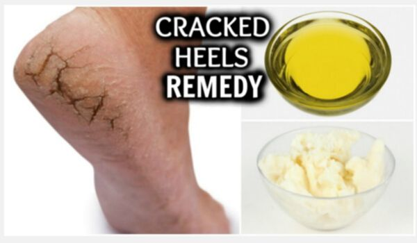 Photo of 10 Best and Effective Home Remedies for Cracked Heels