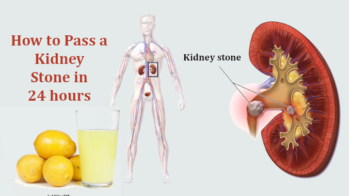 How to Pass a Kidney Stone in 24 hours