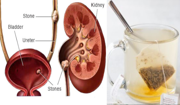 Without Surgery How to Pass a Kidney Stone Forever in 24 hours