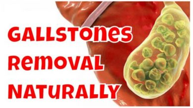 Photo of Gall Bladder Stone Removal Without Surgery in 7 Days!