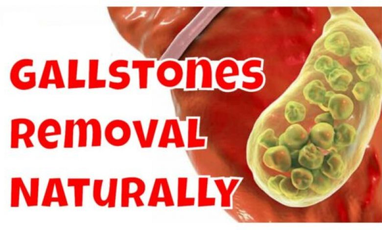 Gall bladder Stone Removal Without Surgery