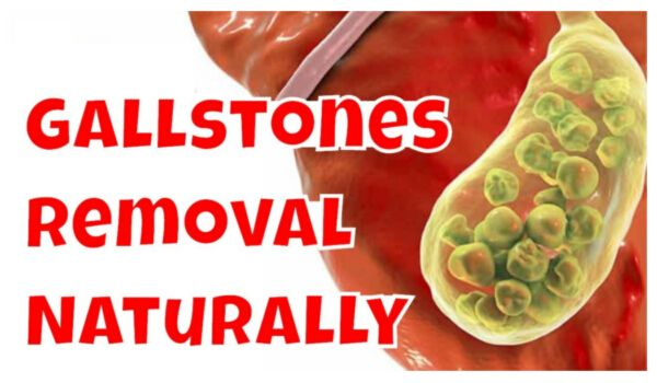Photo of See Gall Bladder Stone Removal Without Surgery in 7 Days!