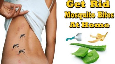 Photo of 9 Home Remedies for Mosquito Bites-Stop Itching Fast