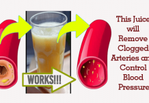 Remove Clogged Arteries