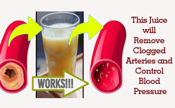 Remove Clogged Arteries