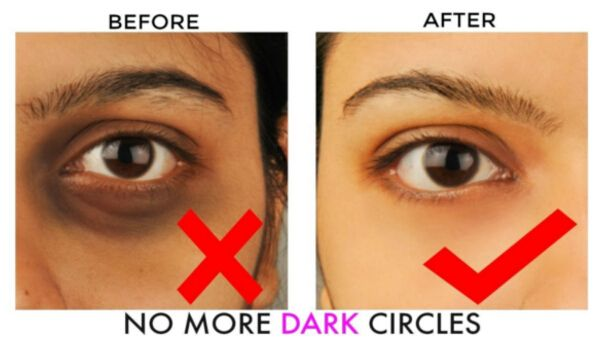 Photo of How to Remove Dark Circles in 2 Days Permanently