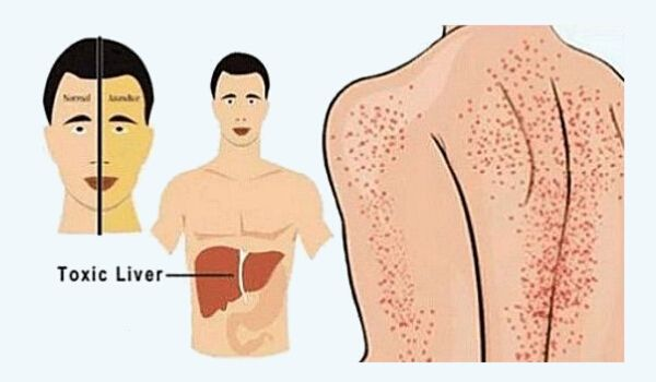 Photo of Liver Damage: 9 Everyday Habits That Damage Your Liver You Must Know!