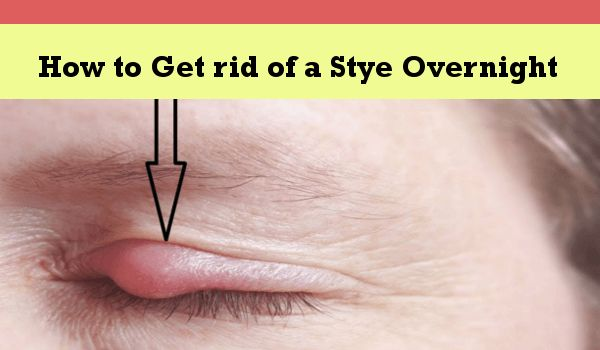 Photo of How to Get rid of a Stye Overnight