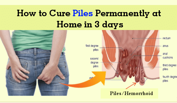 How to Cure Piles Permanently at Home in 3 days