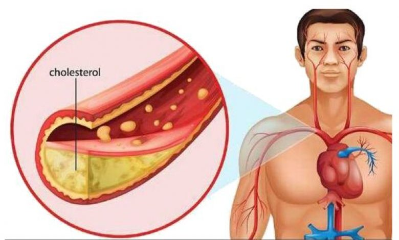 Foods that Lower Cholesterol Fast