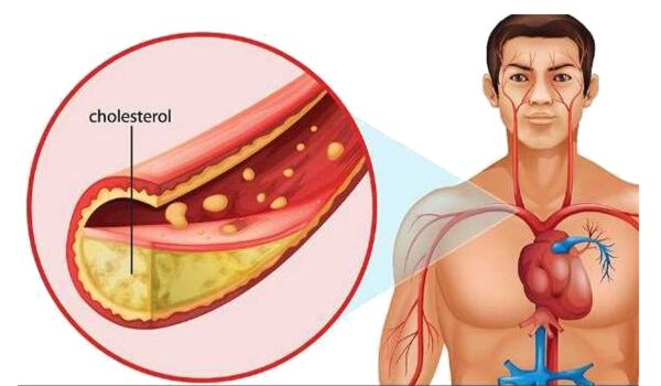 Photo of 10 Surprising Foods that Lower Cholesterol Fast
