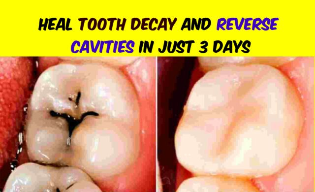 How to Heal Tooth Decay and Reverse Cavities In Just 3 Days
