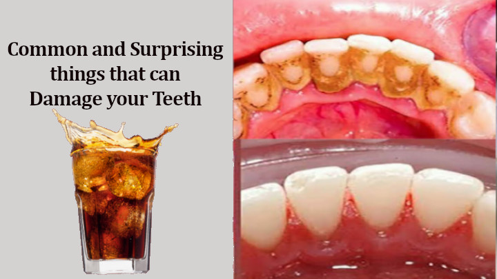 things that can damage your Teeth