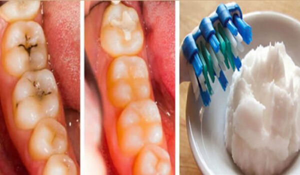 Photo of How to Heal Tooth Decay and Reverse Cavities In Just 3 Days