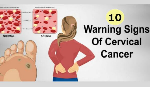 10 Warning Signs of Cervical Cancer You Should Not Ignore