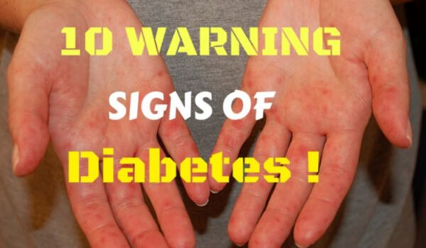 10 Early Warning Signs of Diabetes Everyone Should Know!