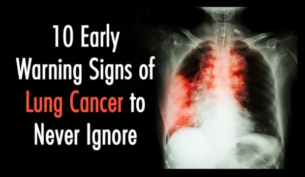 10 Early Warning Signs of Lung Cancer