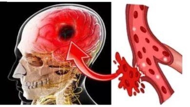 Photo of 7 Early Warning Signs of a Stroke Everyone Should Know