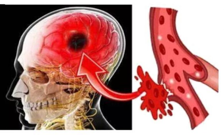 7 Early Warning Signs of Stroke