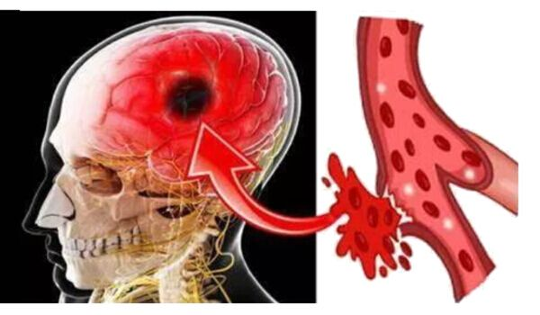 Photo of 7 Early Warning Signs of Stroke Everyone Should Know