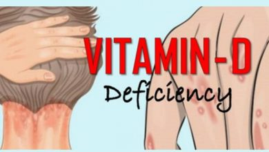 Vitamin D deficiency Symptoms
