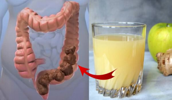 How to Cleanse Your Colon in Just Two Weeks